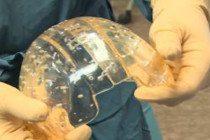 El implante craneal impreso en 3D